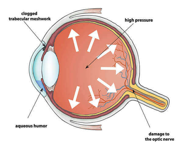 Chart Showing What Glaucoma Does Inside the Eye