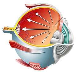 Diagram Showing Pressure in the Eye Caused by Glaucoma
