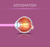 Astigmatism in the Eye