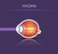 Myopia in the Eye