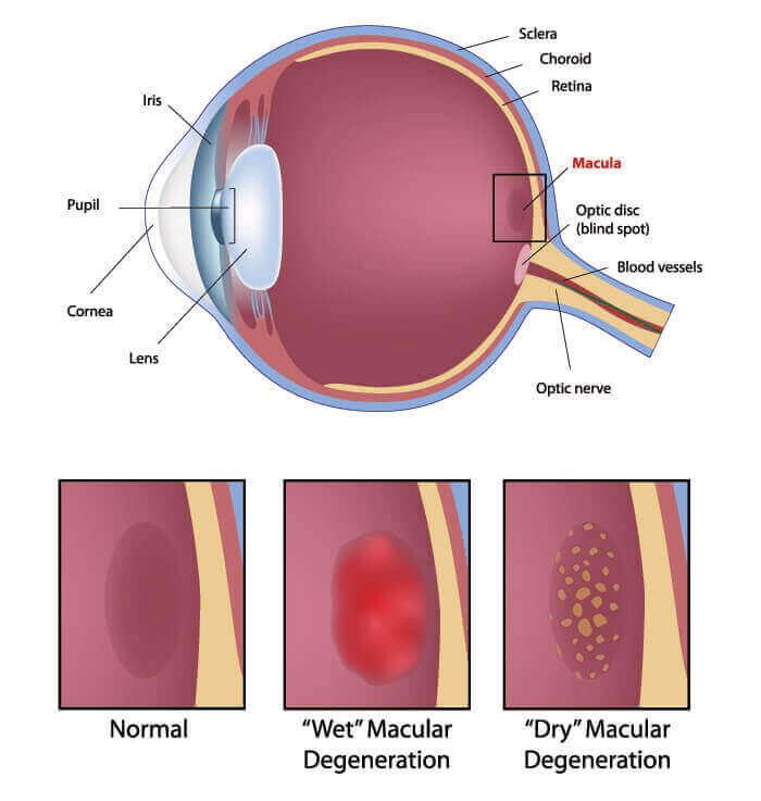Diagram Showing What Macular Degeneration Looks Like in The Eye