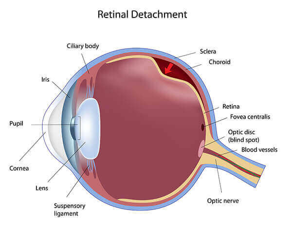 Diagram Showing What it Look Like to Have a Retinal Detachment